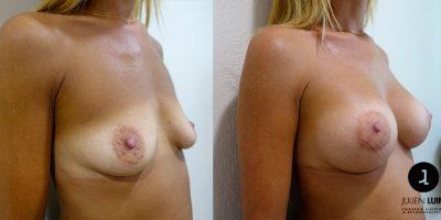 augmentation-mammaire-nice-docteur-luini-1