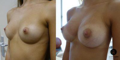 augmentation-mammaire-resultat-avant-apres-nice-1