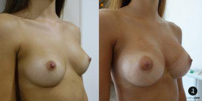 augmentation-mammaire-resultat-avant-apres-nice-2