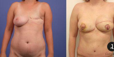 avant-apres-reconstruction-mammaire-autologue-antibes-3