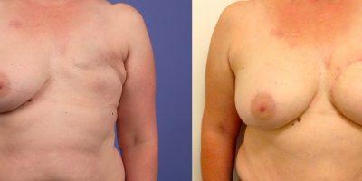 avant-apres-reconstruction-mammaire-autologue-antibes-4