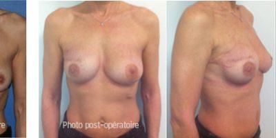cancer du sein reconstruction antibes