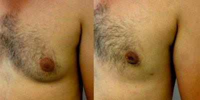 gynecomastie-nice-docteur-luini-chirurgien-esthetique-1
