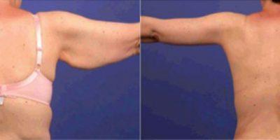 lifting-bras-docteur-julien-luini-antibes