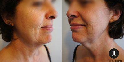 lifting-cervico-facial-docteur-julien-luini-antibes-3