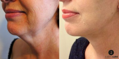 lifting-cervico-facial-nice-2
