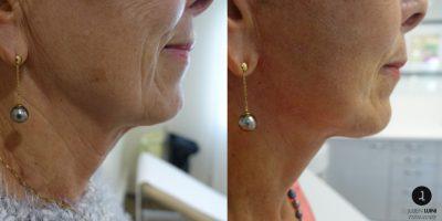 lifting-cervico-facial-resultat-avant-apres-nice-1