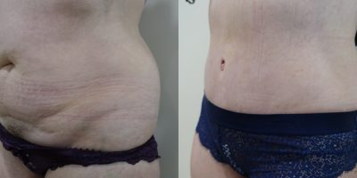plastie-abdominale-resultat-avant-apres-nice-2
