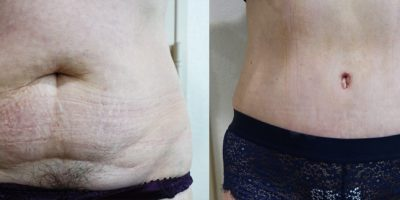 plastie-abdominale-resultat-avant-apres-nice