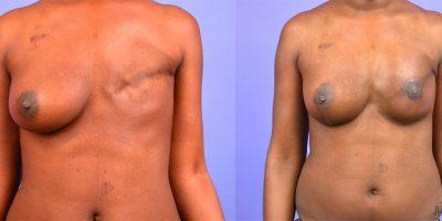 reconstruction-mammaire-par-prothese