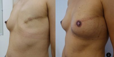 reconstruction-mammaire-par-prothese-docteur-luini-chirurgie-esthetique-nice-2