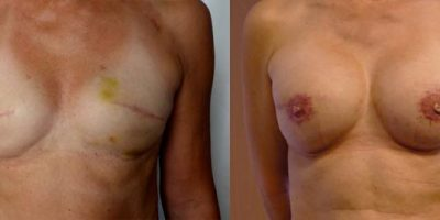 reconstruction-mammaire-par-prothese-docteur-luini-chirurgie-esthetique-nice