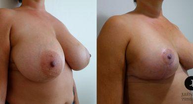 reduction-mammaire-nice-docteur-luini-2