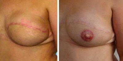 symétrisation mammaire antibes