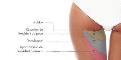 lifting-cuisse-docteur-luini-chirurgie-esthetique-antibes
