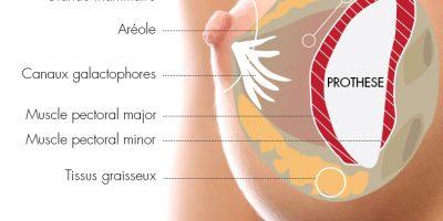 augmentation-mammaire-prothese-docteur-luini-chirurgie-esthetique-antibes-2