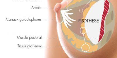 augmentation-mammaire-prothese-docteur-luini-chirurgie-esthetique-antibes-3