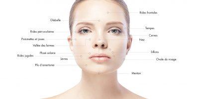 zones-injections-acide-hyaluronique-docteur-julien-luini-chirurgie-esthetique-antibes
