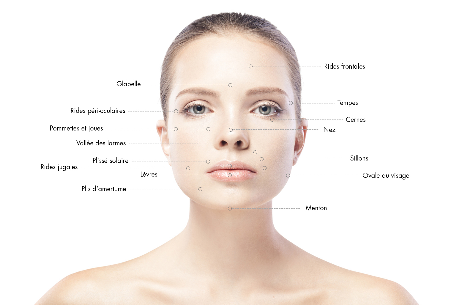 zones-injections-acide-hyaluronique-docteur-julien-luini-chirurgie-esthetique-antibes