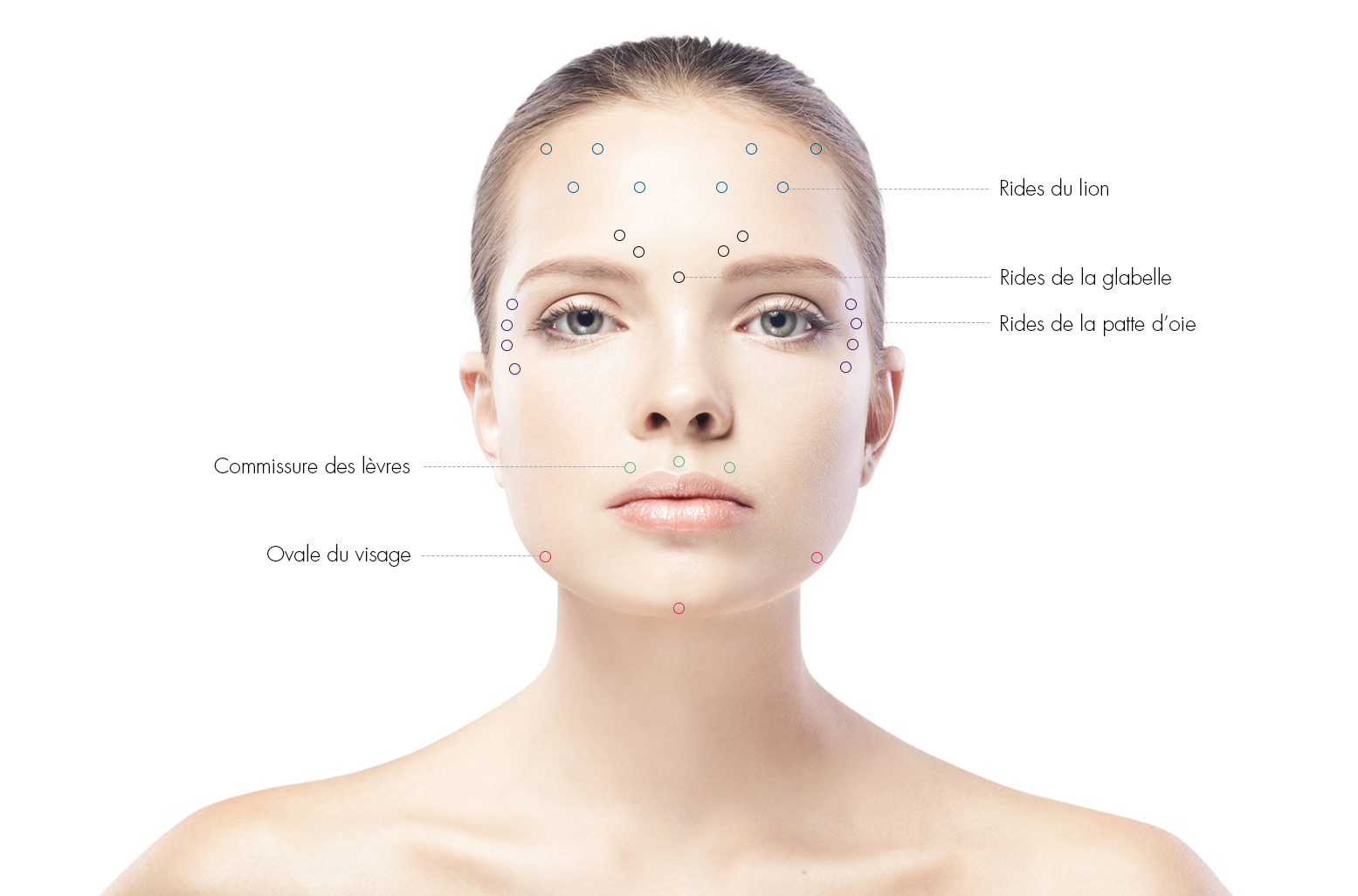 zones-injections-toxine-botulique-docteur-julien-luini-chirurgie-esthetique-antibes