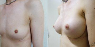 patient001-augmentation-mammaire-v3