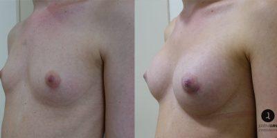 augmentation-mammaire-nice-2