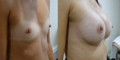 augmentation-mammaire-nice-3