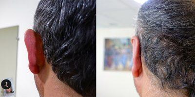 Docteur Luini – avant après derrière oreille