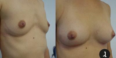 Augmentation mammaire par lipofiling