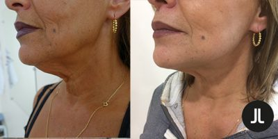Le lifting cervico-facial ou lifting du visage