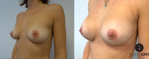 Augmentation mammaire par prothèses, avant / après