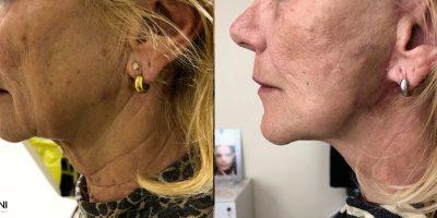 Lifting cervico-facial Nice