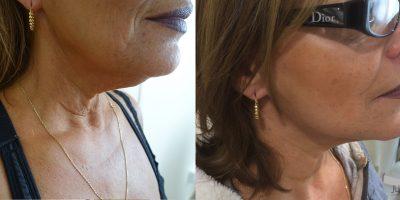 Lifting Cervico Facial Chirurgie dEsthétique & Plastique