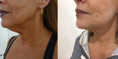 Lifting Cervico Facial Chirurgie Esthétique & Plastique