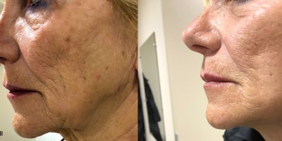 Lifting Cervico Facial Chirurgie Esthétique