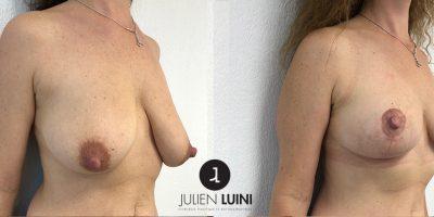 Lifting mammaire-associé à un lipofilling (injection-de-graisse)