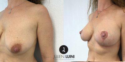 Lifting mammaire-associé à un lipofilling (injection de graisse)