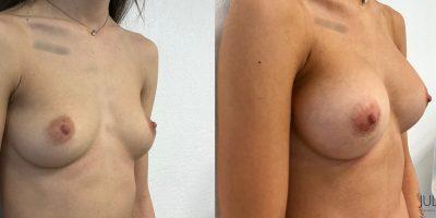 Augmentation mammaire par prothèse ronde, dual-plan, cicatrice hémiaréolaire inférieure