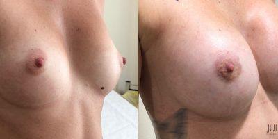 Augmentation-mammaire-2