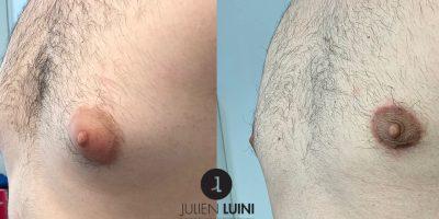 Cure de gynécomastie bilatérale avec réduction du volume aréolaire
