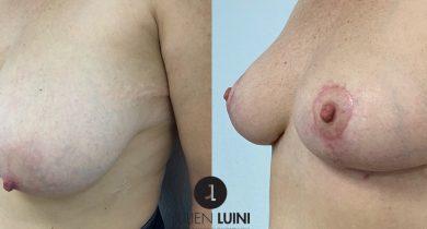 plastie-mammaire-de-réduction-pour-hypertrophie-et-ptose