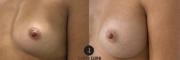 Augmentation mammaire par prothèses, voie d'abord sous-mammaire