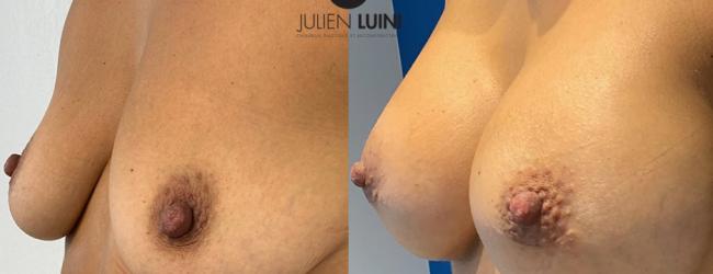 augmentation mammaire par prothèses ronde, cicatrice hémiaréolaire inférieure