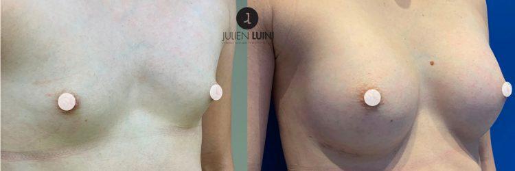 agénésie mammaire augmentation mammaire